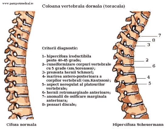 Imagini pentru tratament hipercifoza scheuermann